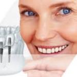 Услуги имплантации зубов