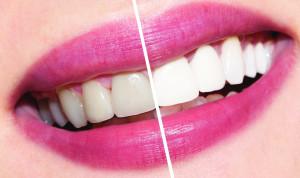 Отбеливание зубов в стоматологии: самые эффективные способы