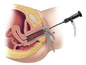 Гистероскопия матки: особенности, показания к проведению, возможные последствия