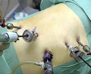 Лапароскопическая нефрэктомия: суть, показания, особенности подготовки и проведения
