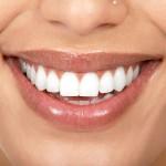 Профессиональная чистка – залог здоровья зубов