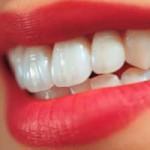 О достоинствах и недостатках имплантации зубов
