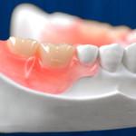 Протезирование на имплантах — лучшее восстановление утраченных зубов