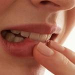 Периодонтит: основные симптомы