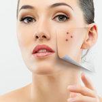 Дека Клиника – лазерное удаление кожных новообразований