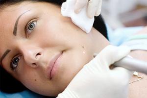 Удаление новообразований на коже лица