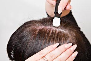 Как происходит процедура пересадки волос и последующее восстановление