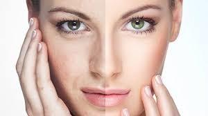 Как улучшить свое лицо?