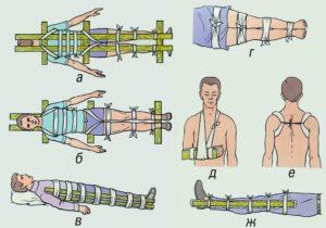 Доврачебная помощь на поле боя: пулевое ранение и перелом
